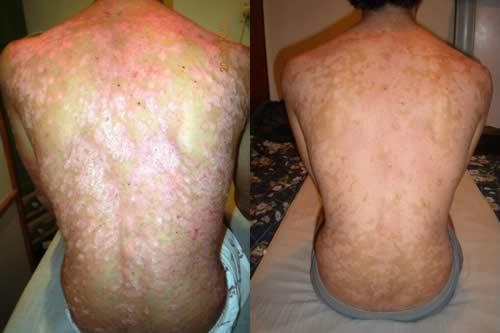 psoriasis  en la espalda antes y después del tratamiento con Reiki