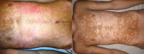 psoriasis  en el pecho antes y después del tratamiento con Reiki