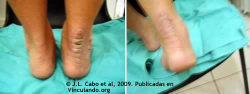Psoriasis treatment in the feet; before and after
