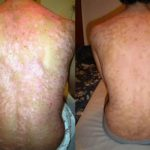 Tratamiento de psoriasis con Reiki